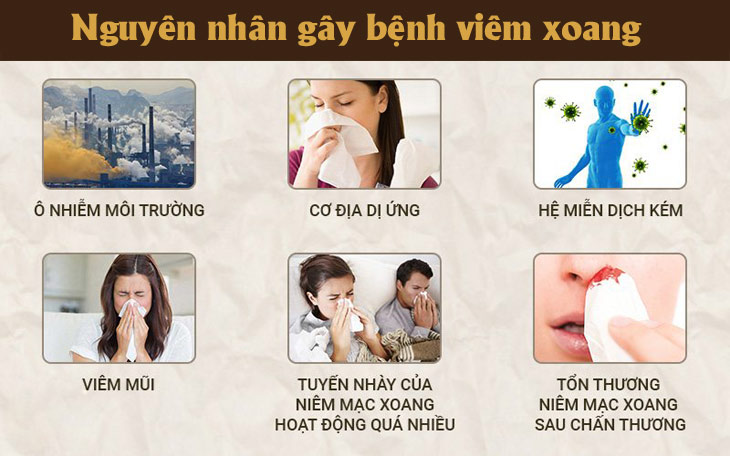 Nguyên nhân gây bệnh viêm xoang theo y học hiện đại