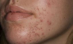 Da mặt bị mụn