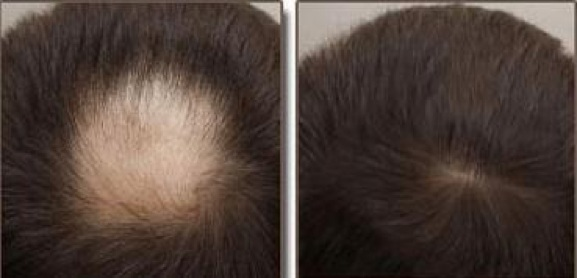 Hình ảnh trước và sau khi chữa rụng tóc bằng bài thuốc bí truyền