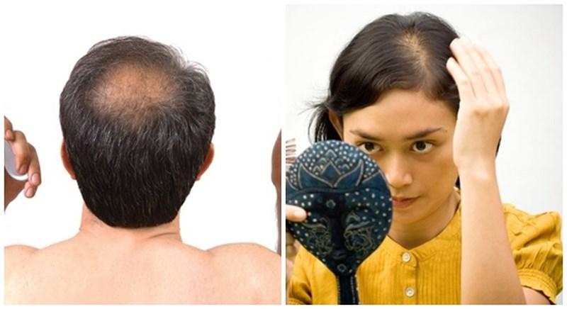 Bệnh rụng tóc ở cả nam lẫn nữ