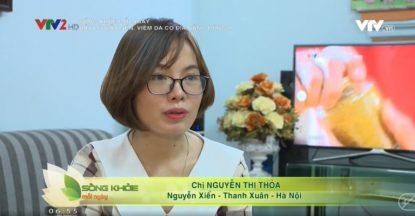 VTV2 đưa tin bệnh nhân điều trị viêm da cơ địa hiệu quả
