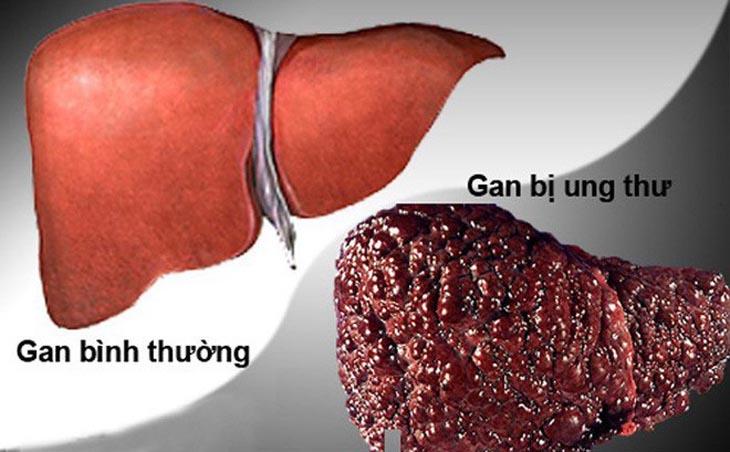 Nóng gan nổi mề đay mãn tính có thể gây ung thư gan