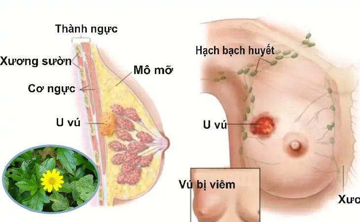 Sài đất điều trị bệnh viêm tuyến vú hiệu quả