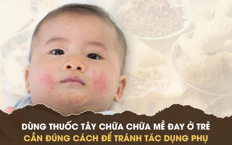 Thận trọng khi dùng thuốc Tây chữa mề đay cho bé