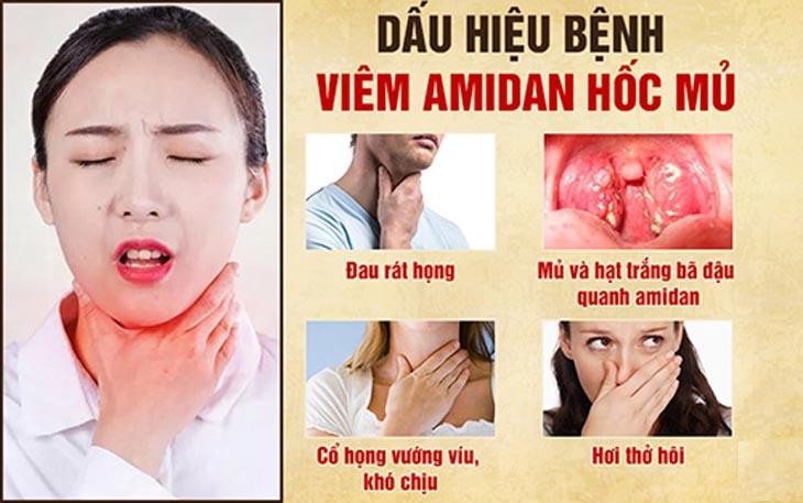 Triệu chứng viêm amidan hốc mủ