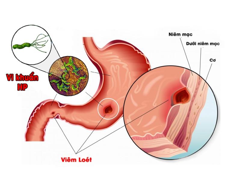 Viêm dạ dày mãn tính là giai đoạn bệnh nguy hiểm