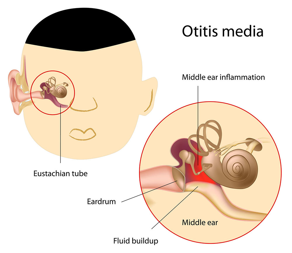 Bệnh viêm tai giữa cấp tính gây ảnh hưởng tới thính lực