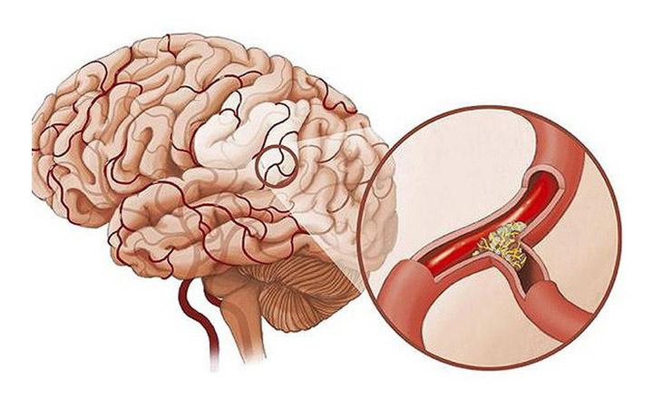 Viêm tai giữa ứ dịch có thể dẫn bệnh viêm màng não