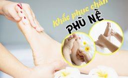 chữa phù chân bằng Đông y