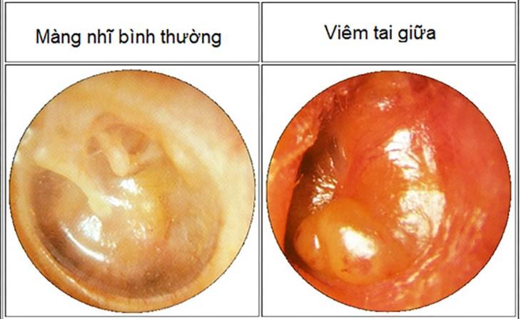Bệnh viêm tai giữa gây ra nhiều phiền toái trong cuộc sống của người bệnh