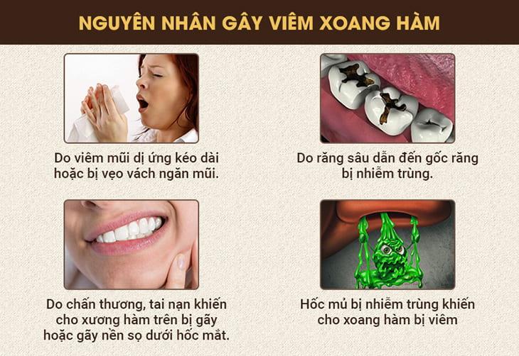 Các nguyên nhân gây viêm sưng tổn thương tại xoang hàm