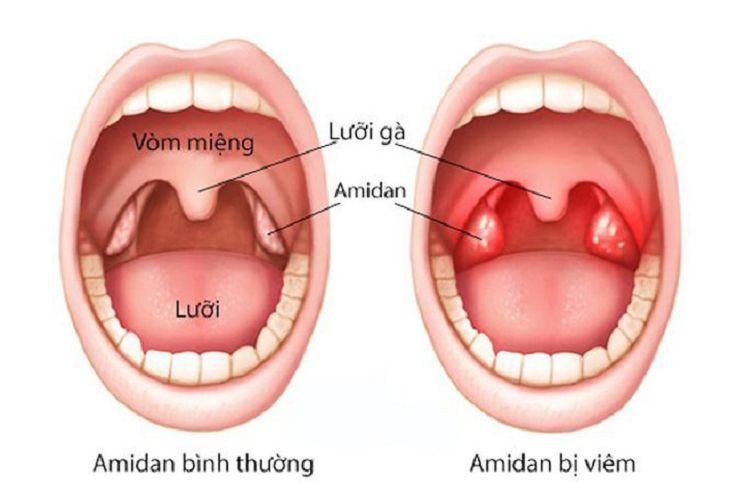 Các khối amidan phân bố quanh vòm họng tạo thành vòng bạch huyết