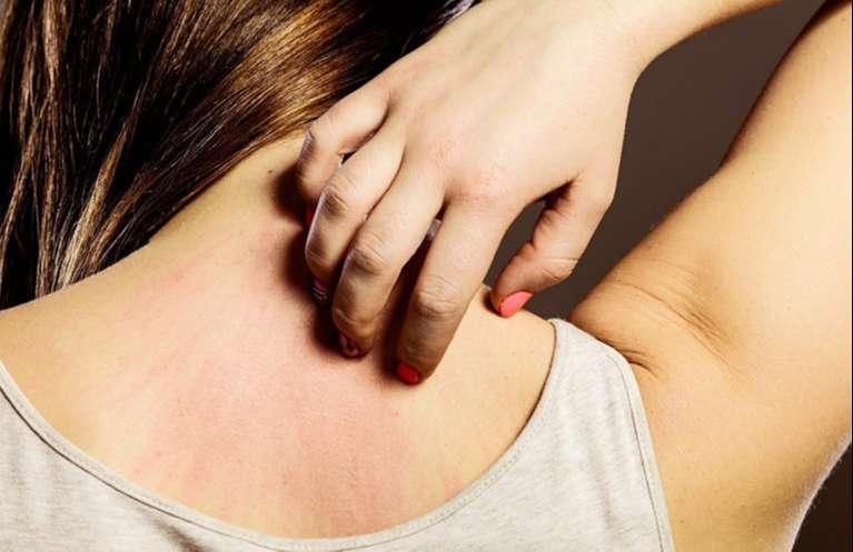 Da bị ngứa châm chích là bệnh gì?
