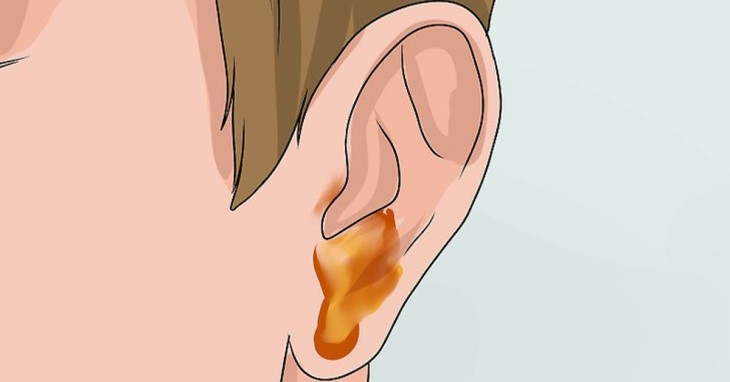 Ở mức độ nặng, bệnh nhân viêm tai giữa sẽ xuất hiện dịch vàng chảy ra từ trong tai