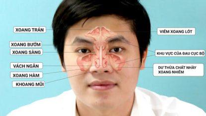 Viêm đa xoang là tình trạng nhiễm trùng ở nhiều xoang