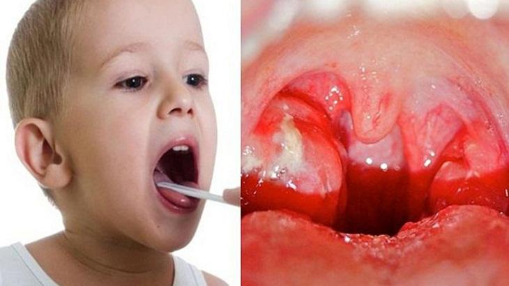Viêm tai giữa ở trẻ gây biến chứng viêm họng, viêm VA