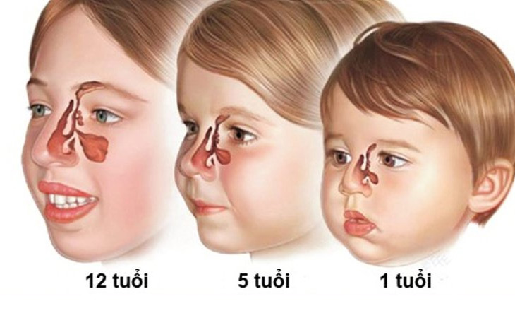 Trẻ nhỏ là đối tượng dễ bị viêm xoang do có hệ miễn dịch yếu