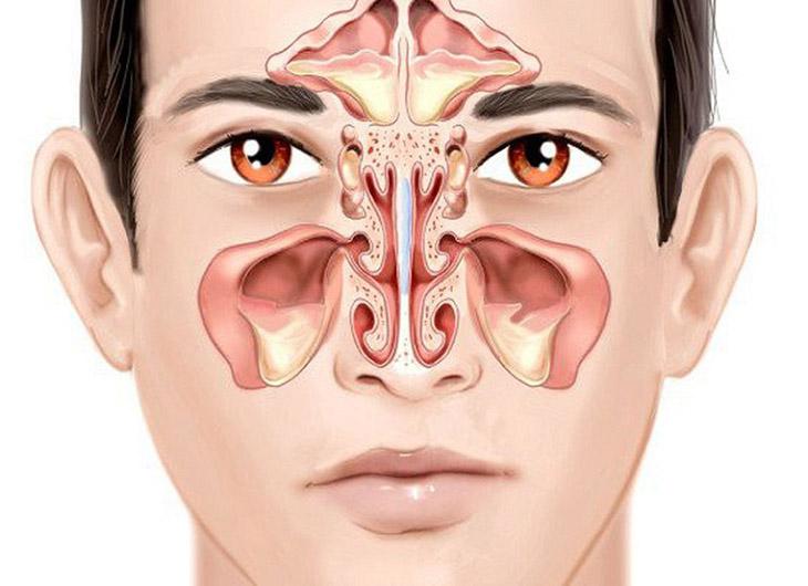 Người bị viêm xoang mũi thường có biểu hiện sưng nhức ở vùng mũi, tắc nghẹt, chảy dịch mũi,
