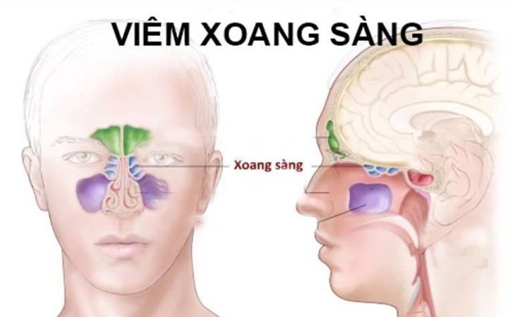 Hình ảnh mô tả về bệnh viêm xoang sàng