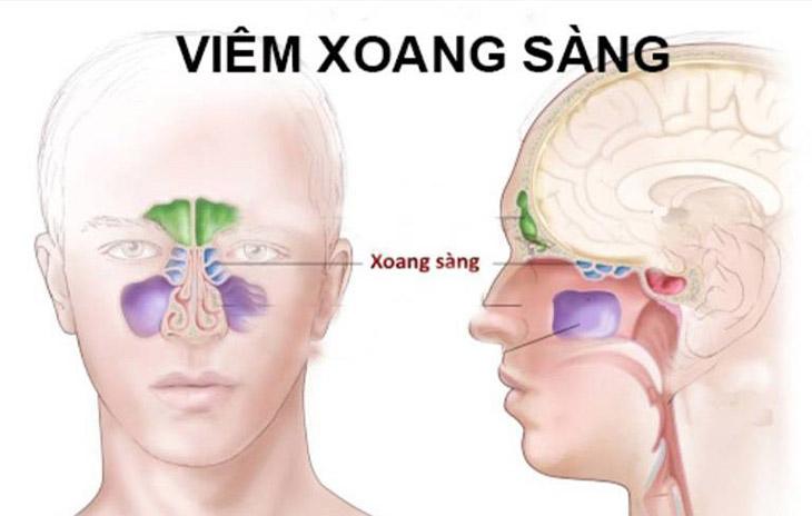 Người bị viêm xoang sàng thường bị đau nhức từ đầu đến gáy