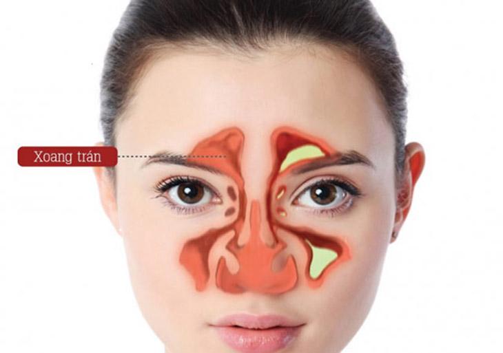 Viêm xoang trán đặc trưng bởi tình trạng đau nhức, buốt cả đầu, hốc mắt