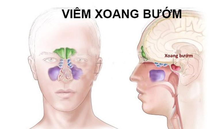 Người bệnh thường bị phù nề niêm mạc xoang, đau từ đầu ra sau gáy