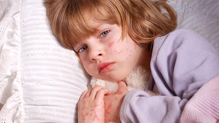 Bệnh khiến trẻ mệt mỏi, khó chịu