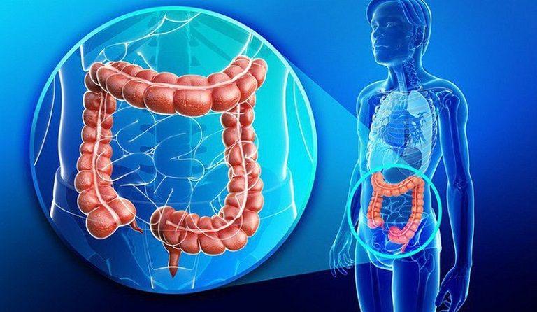 Bệnh viêm đại tràng cấp không nguy hiểm nếu được điều trị kịp thời