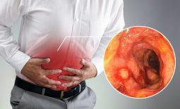 Viêm đại tràng mãn tính là gì? Triệu chứng, cách chữa an toàn và hiệu quả