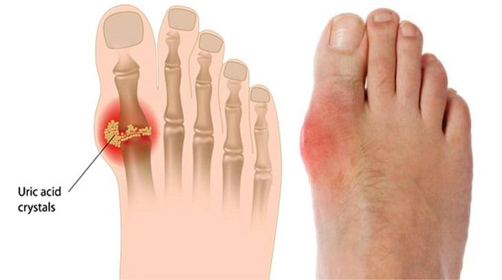 Gout là dạng viêm khớp chuyển hóa phổ biến
