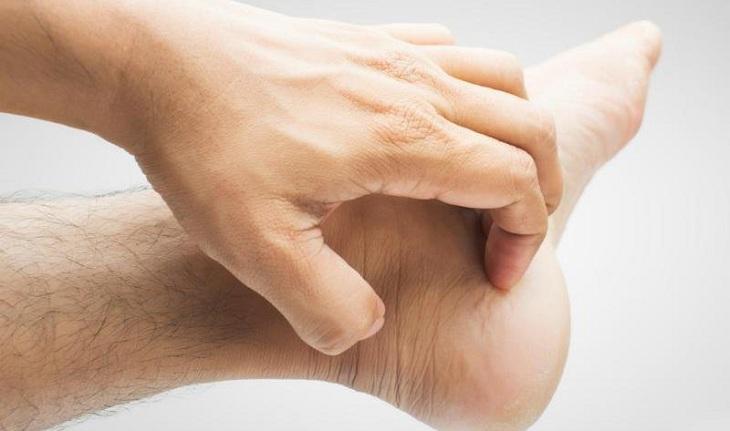 Ngứa mu bàn tay, bàn chân do tiếp xúc với dị nguyên