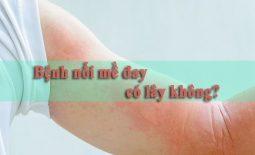 Bệnh nổi mề đay có lây không -thumb