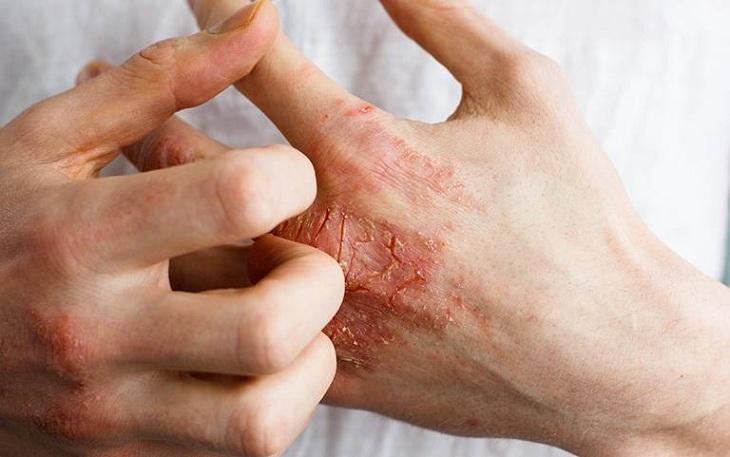 Ngứa ngáy ở vùng mu bàn tay kéo dài là dấu hiệu của nhiều bệnh ngoài da