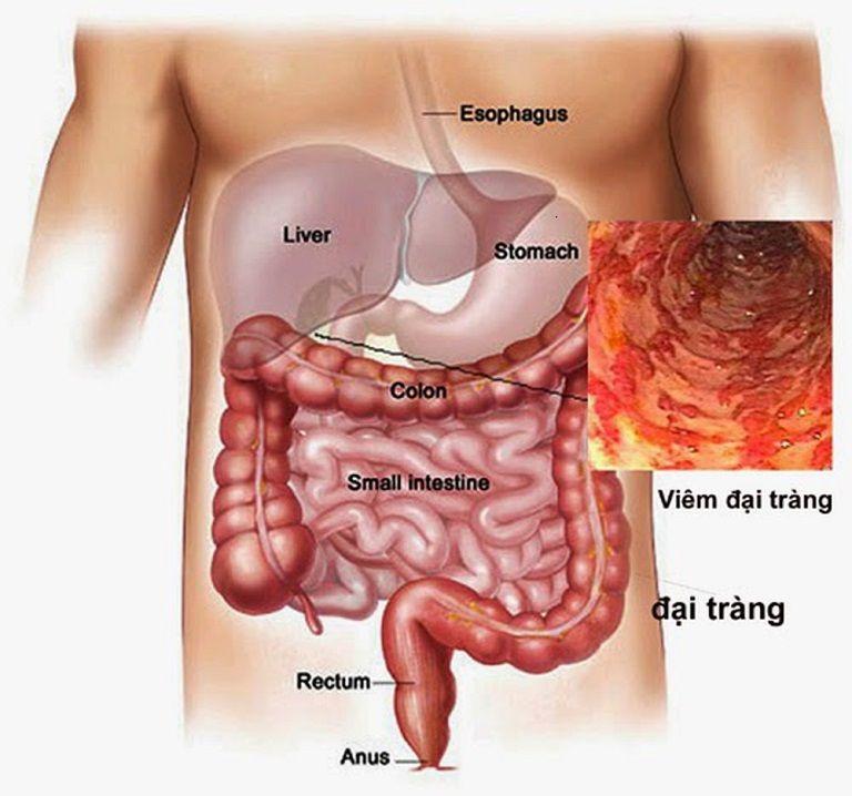 Hình minh họa bệnh viêm đại tràng