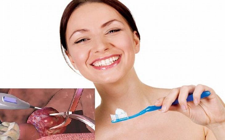 Vệ sinh khoang miệng sạch sẽ để phòng tránh biến chứng