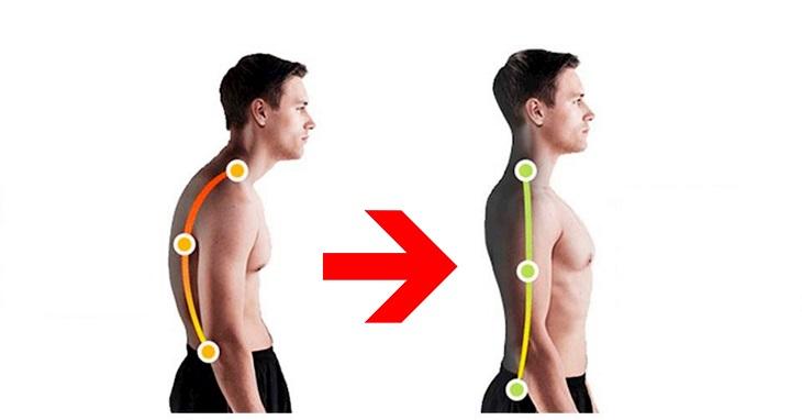 Gù lưng, lệch dáng đi là biến chứng thường thấy