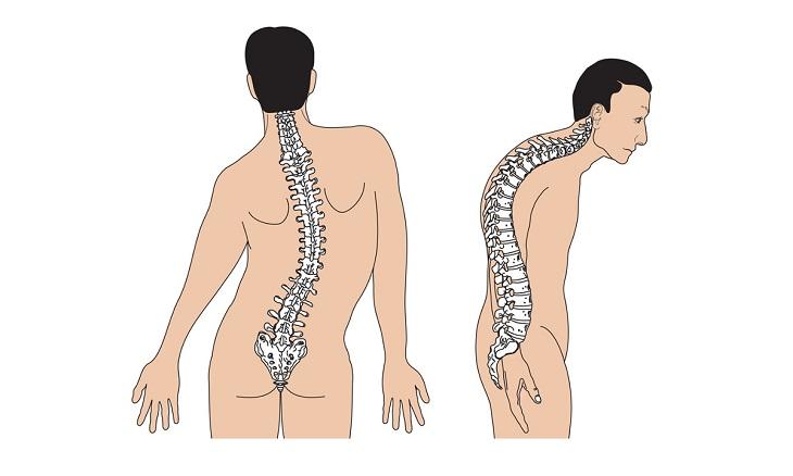 Thoát vị đĩa đệm có thể khiến người bệnh vẹo cột sống