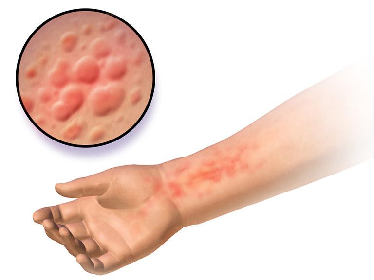 Nổi mẩn đỏ ngứa rát là triệu chứng do uống rượu nổi mề đay
