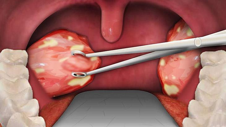 Phẫu thuật cắt bỏ amidan điều trị dứt điểm hiệu quả nhất