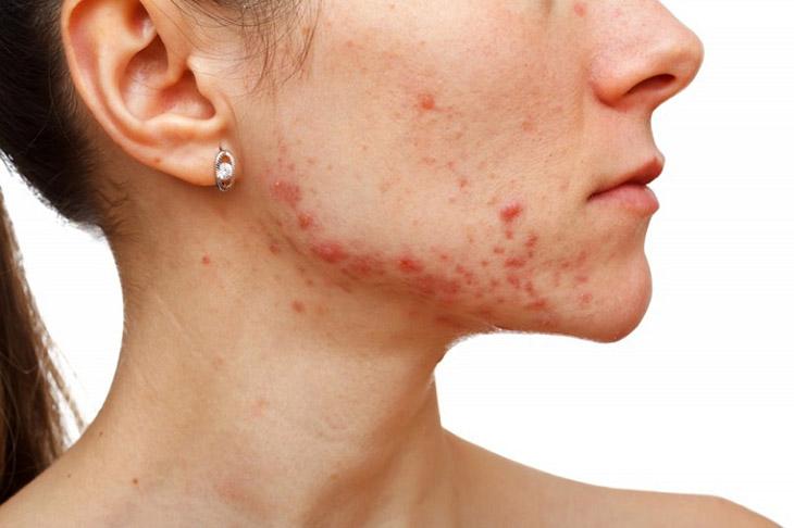 Trị mụn để phục hồi da