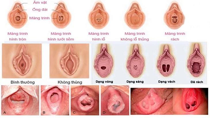 Cơ thể mỗi người phụ nữ sẽ có cấu tạo màng trinh khác nhau