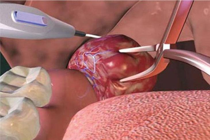 Thuốc gây mê cũng là yếu tố cần lưu ý khi thực hiện thủ thuật cắt amidan