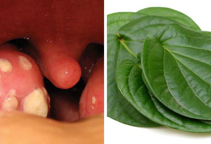 Chữa viêm amidan bằng lá trầu không được nhiều người bệnh lựa chọn
