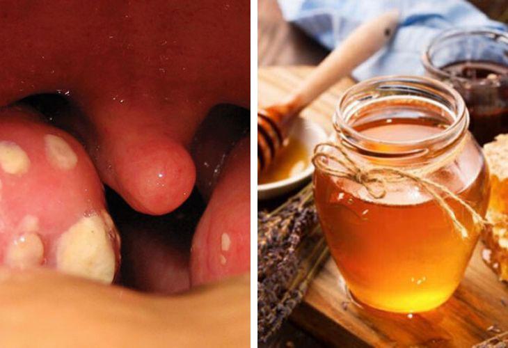 Chữa viêm amidan bằng mật ong được nhiều người bệnh tin tưởng sử dụng