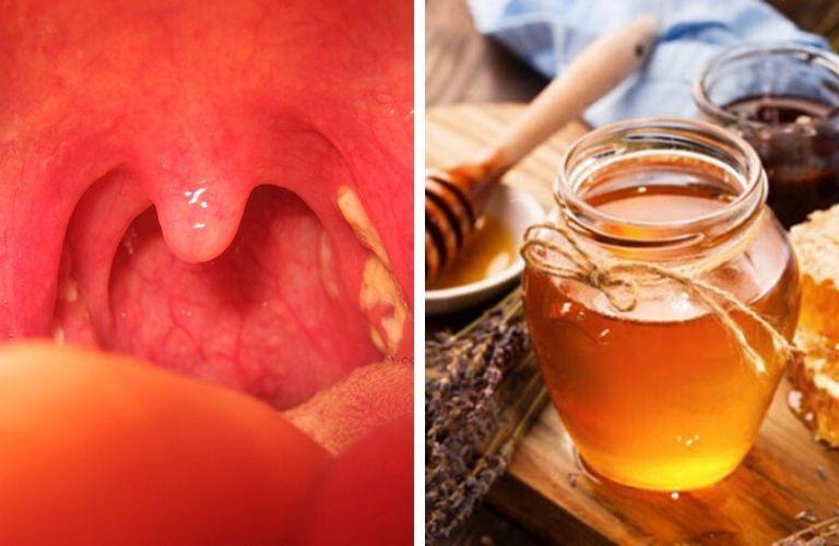 Bài thuốc chữa viêm amidan hốc mủ bằn mật ong