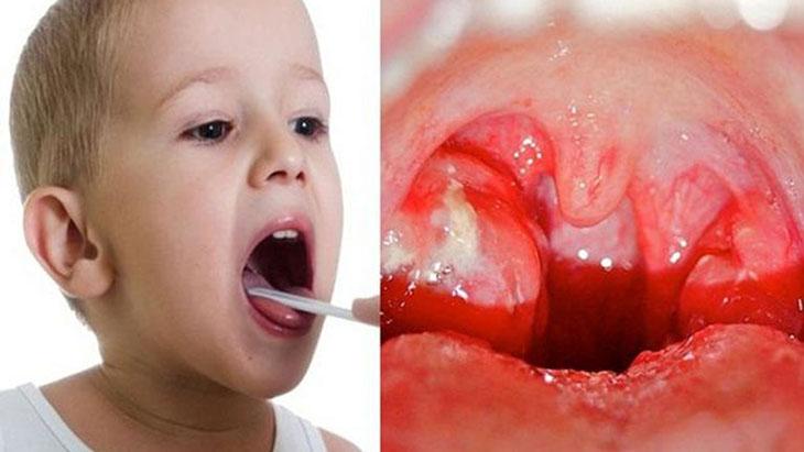 Cách chữa viêm amidan ở trẻ em phù hợp sẽ giúp bệnh nhanh chóng dứt điểm
