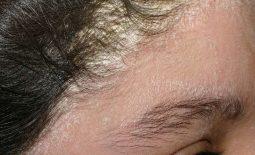 da đầu ngứa có vảy trắng