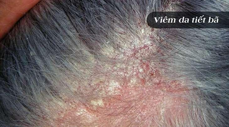 Viêm da tiết bã nhờn gây tình trạng ngứa da, bong tróc vảy