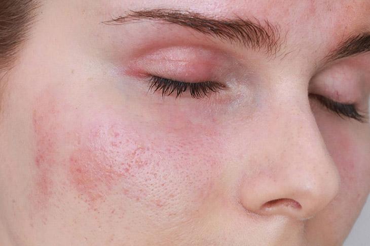 Da mặt bị mẩn đỏ ngứa rát ảnh hưởng lớn đến thẩm mĩ