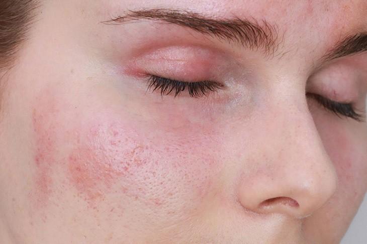 Ngứa da có thể là triệu chứng của bệnh nổi mề đay